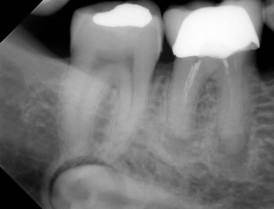 Сегментна рентгенография(периапикална)