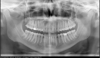 Показва цялостния изглед на челюстите, темпоромандибуларните стави, назалната област , част от синусите. Необходима е за доброто планиране на лечение, чрез нея се откриват вродени аномалии, патолагични процеси, фрактури, кисти и положението им спрямо кост