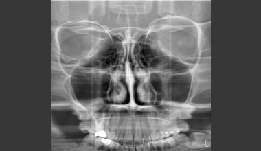 Рентгенография на синуси