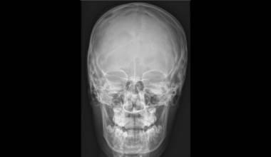 Рентгенография на череп